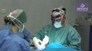 Operace obličeje MACS-lift na klinice Aestea