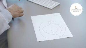 Innovative Technik der Schamlippenverkleinerung in der Lucerne Clinic