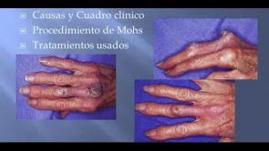 Tumores de Mano