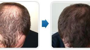 Transplantacja włosów nowoczesną metodą FUE
