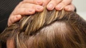 Netrapte se ztrátou vlasů. Vědci vyvinuli řešení