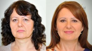 Dokonalý lifting obličeje a korekce víček na Klinice YES VISAGE