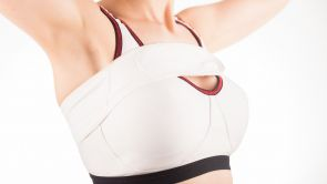 Brustvergrößerung mit Silikonimplantaten