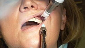 Wizyta u dentysty nie musi boleć – sprawdź nowe sposoby  znieczulenia