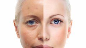 Importanţa fotografiilor înainte şi după intervenţiile estetice