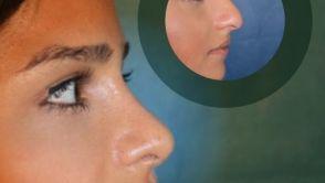 Schönes Sinnesorgan Nase: Form & Funktion