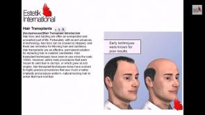 Hair Transplant by Estetik International