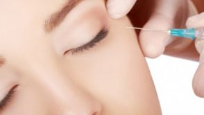 Frotox - die Alternative zu Botox
