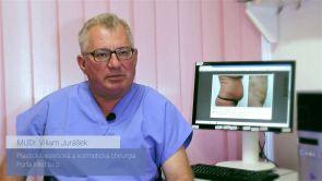 Vyťahaná koža po liposukcii