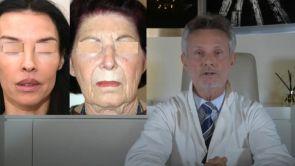 COMBIEN DE TEMPS DURE UN LIFTING ? TOUTE LA VIE ! Dr J BUIS