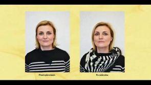 Ulthera v BcD Clinic