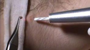 Odstránenie kožných výrastkov/znamienok CO2 laserom