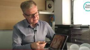 Powiększanie piersi techniką endoskopową - efekty zabiegu