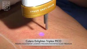 Usuwanie rozstępów laserem Cutera Enlighten PICO MLA