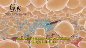 Abdominoplastia para tener un abdomen recto, liso y sin flacidez