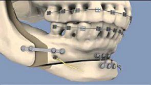 Korekcija velikih urodjenih i stečenih deformacija glave i lica