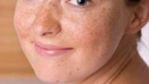 Odstraňovanie nežiadúcich pigmentácií