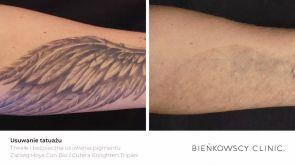 Usuwanie tatuażu i makijażu permanentnego - laser Cutera® EnlightenTM PICO + NANO technologia