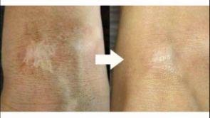 Jak na jizvy? Pomocí laserové terapie!