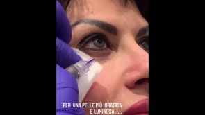 Contorno occhi e contorno labbra con microrughe o da idratare - Dott. Donato Bellone