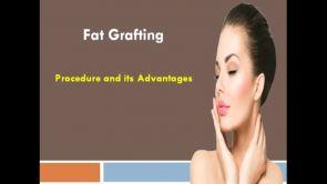 Fat Grafting Procedure and its Advantages