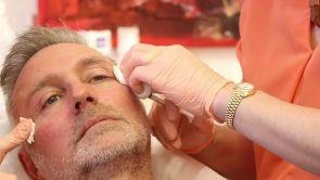Gesichtsbehandlungen bei Mann
