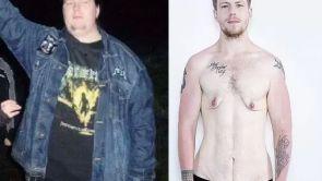 """David zhubl 75 kg: """"Abdominoplastika je pro mě druhá šance na normální život"""""""