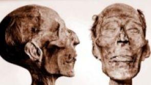 Cirugía plástica: una historia de transformación y vida - 2. Parte