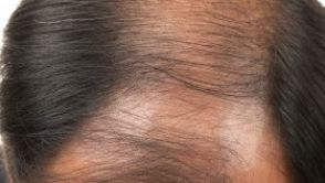 Krafttraining nach Haartransplantation: passionierte Sportler benötigen etwas Geduld