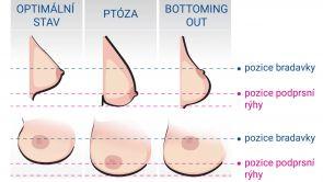 Bottoming out - jeden z důvodů, proč prsa s implantáty klesají