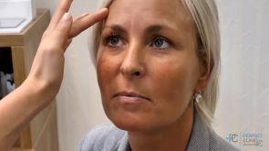 Anti-aging vrátí vašemu obličeji mladší vzhled