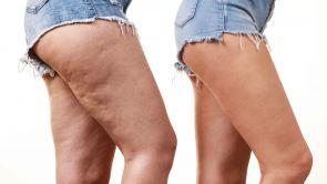 Traitement de la cellulite