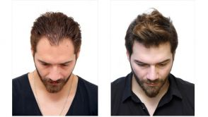 10 Reasons Why Patients Choose Organic Hair Transplant instead of FUE Hair Transplant