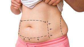 Liposukcja Body-jet evo - nowatorski sposób redukcji tkanki tłuszczowej
