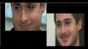 Operace nosu u muže - MUDr. Zdeněk Pros