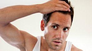 Włos z głowy nie spadnie! - Angel PRP System przeciw łysieniu
