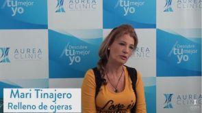 Testimonio Relleno Ojeras con ácido hialurónico Sevilla