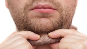 Odstránenie podbradku liposukciou