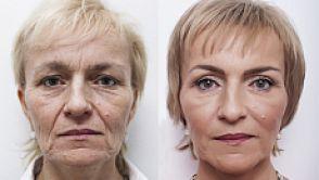 Miniinvazivní facelift obličeje ve 4 etapách a bez hospitalizace