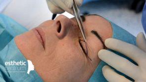 Operácia horných viečok (blefaroplastika)