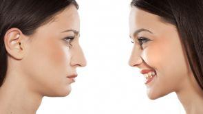 Zalety operacji nosa metodą otwartą