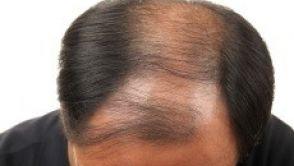 Léčba vypadávání vlasů