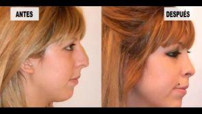 Mejor cirugia plastica de nariz Dr. Bernstein