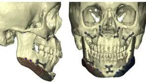 Nouvelles technologies pour la chirurgie du contour facial ; génioplastie, ostéotomie de chin wing et prothèses d'angles mandibulaires.