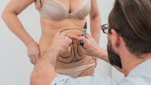 10 pytań na temat liposukcji