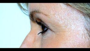 Augenlidstraffung (Blepharoplastik) bei Swisseestetix