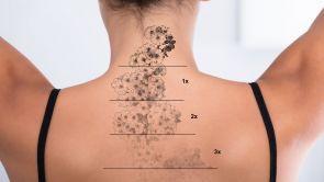 Rimozione laser dei tatuaggi