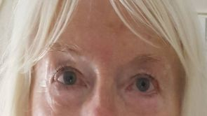 Wie kann man Tränensäcke entfernen?