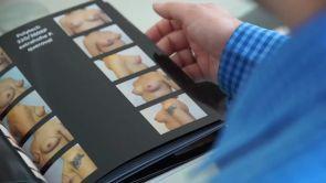 Zufriedene Patientin nach Brustvergrößerung in Düsseldorf