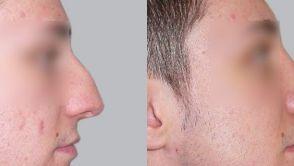 Nur bei uns sehen Sie Ihre neue Nase noch vor der Operation.